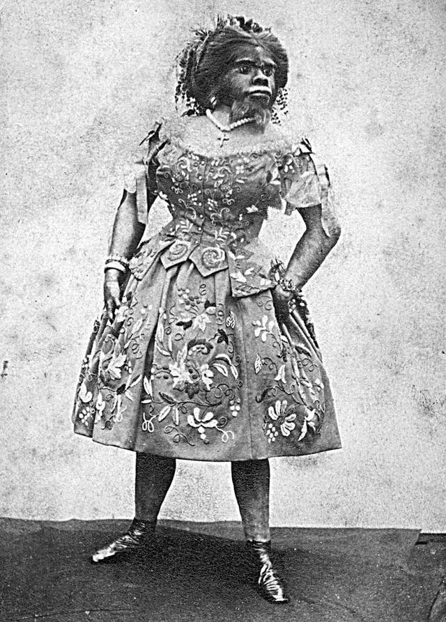 JULIA PASTRANA (1834-1860)